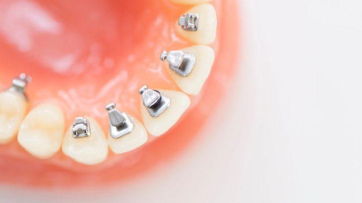 美しい歯並びを手にれるために欠かせない「メンテナンス」とは