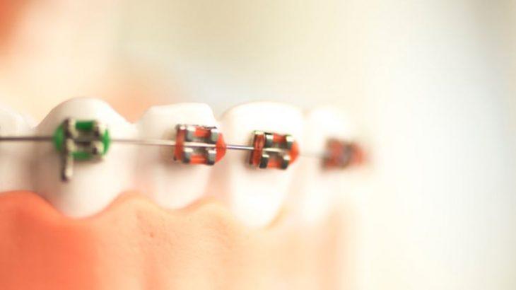歯列矯正をお得にできる部分矯正のメリットとデメリットとは?